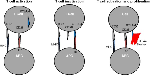 Ipilimumab's mechanism of action. CD28 (T-lymphocyte costimulatory receptor) and CTLA4 (T lymphocyte coinhibitory receptor) have a common tumor antigen ligand (B7). CTLA4, when expressed on T-cell membrane, has a higher affinity for B7 binding, which leads to cancer immune tolerance. Ipilimumab blocks CTLA4 and leads to anticancer immune effects through T-lymphocyte activation.