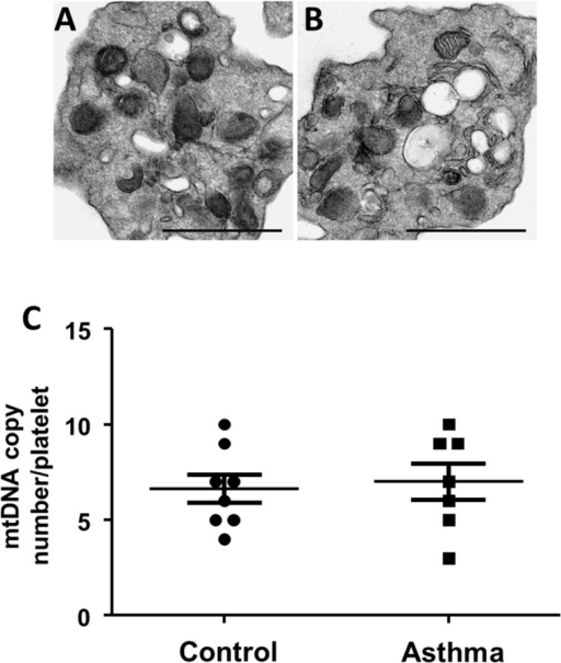 Platelets show no change in mitochondrial number and morphology in asthma.(A-B) Representative electron micrograph of platelet from (A) healthy control and (B) asthma (scale bars: 1 μm). (C) Mitochondrial DNA copy number per platelet in platelets from healthy and asthmatic individuals. n = 7 per group.