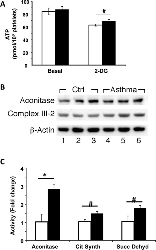 Greater TCA Cycle Activity in Asthma.(A) ATP content in control (white bars) and asthmatic (black bars) individuals basally and after inhibition of glycolysis by 2-DG. (B) Western analyses of aconitase expression in platelets. Asthmatic individials (lanes 4−6) had similar aconitase protein expression in platelets to healthy controls (lanes 1−3) by western blot. (C) Activity of aconitase, succinate dehydrogenase and citrate synthase in platelets from asthmatics (black bars) as a fold change of the activity of control platelets (white bars). n = 13 controls, n = 10 asthmatics. *p<0.01; #p<0.05.