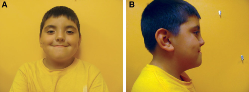 Seven-year-old boy with CFNS. A, Frontal view of the 7-year-old boy displaying microcephaly, hypertelorism, broad nasal root, ptosis, mandibular prognathia, and midface hypoplasia. B, Side profile of the boy showing large ears, mandibular prognathia, midface hypoplasia, and, together with the left-hand panel, scaphocephaly.