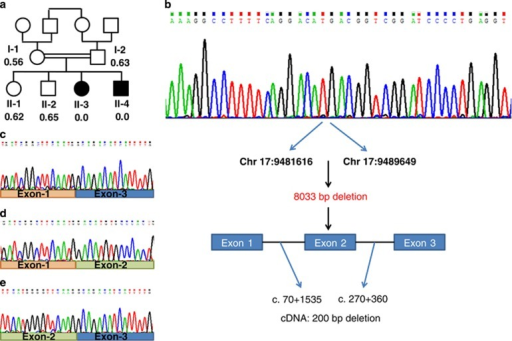 (a) Family pedigree and the WDR16 deletion. The patients are represented by filled symbols. The signal intensity of the Multiplex Ligation-dependent Probe Amplification analysis is shown below the symbols (control intensity 1.01–1.07, n=22). (b) WDR16 genomic sequence of patient II-3 around the breakpoint and schematic representation of the chr17.hg19:g.9481617_9489649del8033. (c) WDR16 cDNA sequence analysis of patient II-3 lacking exon-2 and of an unrelated control (d–e). The full colour version of this figure is available at European Journal of Human Genetics online.