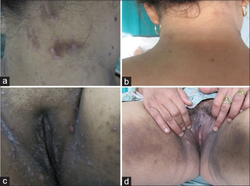 Annular lichenoid plaques on the nape of neck (a) subsiding completely 2 weeks posttreatment (b). Condyloma lata involving groins, labia majora and pubic region (c) with complete resolution post injection penicillin (d)