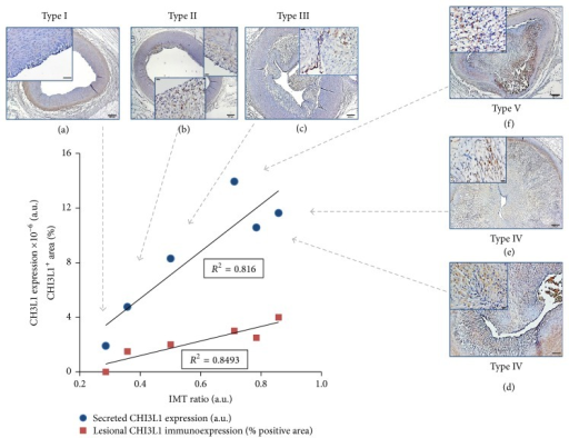 Correlation between secreted and tissue coronary CHI3L1 expression (by LC-MS/MS analysis and immunohistochemistry, resp.) and IMT ratio of corresponding segments at different Stary stages. Representative photomicrographs at low (bar = 200 μm) and high magnification (enlargements of intimal lesion area, insets; bar = 50 μm) from CHI3L1 antibody labeled cross sections of HF RCA segments (from (a) to (f)), according to ATS grade (Stary types I to V) demonstrate the correlation of CHI3L1 expression (dark brown staining indicates positivity) and of ATS stage with secreted CHI3L1 values (arrows). Secreted CHI3L1 expression (blue dots) and CHI3L1 immunoreactivity, expressed as percentage of intralesional positive cell area (red squares), hold direct and significantly linear relations (R2 > 0.8) with the IMT ratio of the same segments.