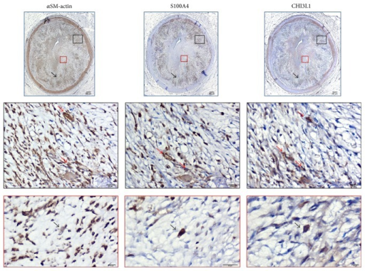 Representative photomicrographs of immunostained consecutive cross sections of RCA in a typical ATH case of HF group (immunopositive cells are dark brown). Immunostained sections demonstrate tissue codistribution (top row) and cell colocalization (middle and bottom rows) of anti-CHI3L1 with anti-αSM-actin and with anti-S100A4 antibodies in a fibrolipid plaque. Enlargements of plaque regions (black and red insets) are displayed in middle and bottom row, respectively. Plaque areas labelled by anti-αSM-actin, anti-S100A4, and anti-CHI3L1 antibodies are indicated (top panels, black arrows; bar = 200 μm) and colocalization of all three antibodies in the same cell type evidenced (bottom panels, black arrows; bar = 10 μm). CHI3L1 immunopositive cells resulted also in αSM-actin or S100A4 positive or both (middle panels, red arrows; bar = 20 μm).