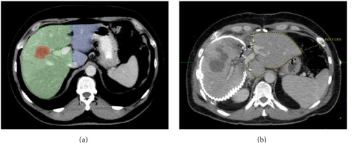 Pre- and postoperative CT-scan of the liver. Preoperative CT-scan depicting the tumor lesion (marked red) within the right liver lobe (a). Furthermore, the resected liver portion (marked green) and the resulting future liver remnant (FLR; marked blue) are shown. (b) CT-volumetry 10 days after the first step of ALPPS resulted in a significant increase of the FLR (marked by dotted yellow line). The extended right liver lobe (wrapped in a silicone matting) meanwhile showed signs of necrosis following ligation of the right portal vein.