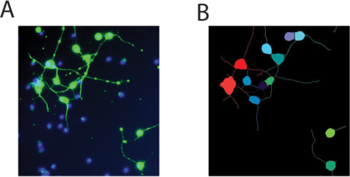 Cell segmentation.(A) Neurons injured with 38% strain and imaged 4 hours post injury with calcein AM (green) and Hoechst 33342 staining (blue) (B) Automated segmentation of the image into cell bodies and neurites. Note that beads on neurites are rejected as cell bodies based on their size and the absence of Hoechst-positive nuclei. Extracellular nuclei are rejected as cell bodies based on the absence of calcein AM staining.