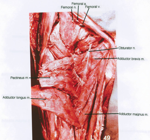 pectineus muscle; adductor longus muscle; femoral nerve; femoral artery; femoral vein; obturator nerve; adductor brevis muscle; adductor magnus muscle