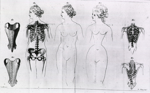 <p>Three-quarter length female figure with partial skeleton; comparison between a natural waist and a constricted waist deformed through the use of corsets.</p>