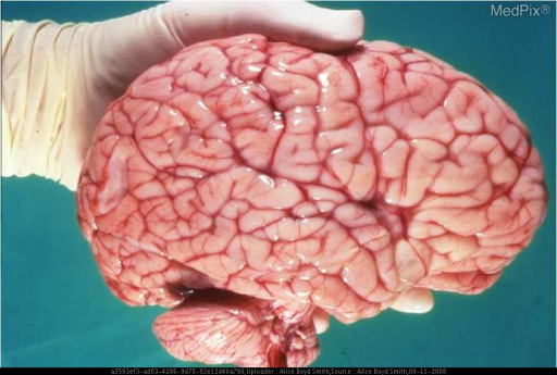 The brain is remarkably enlarged for a 6 month old - compare to the size of adult  hand  holding the specimen.