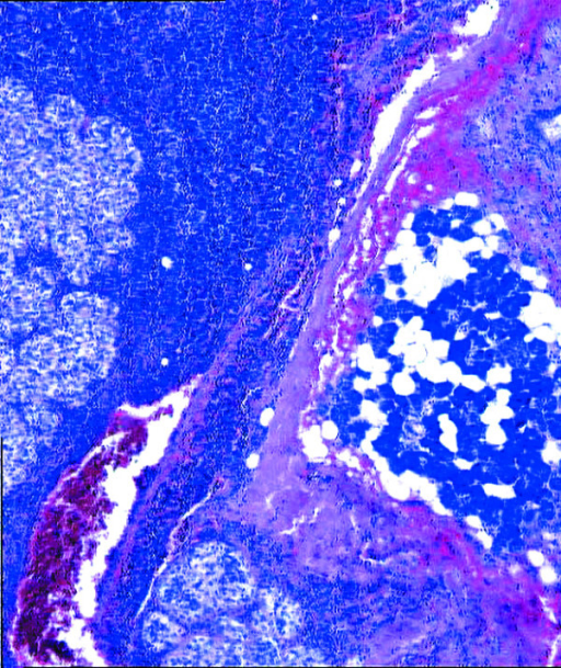 Parotid gland with the neoplasia and intraparotid lymph node involvement by the neoplastic proliferation (hematoxylin and eosin, 200×).
