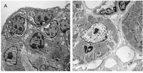Electron microscopic microphotographs of accumulated neutrophils within the epicardium (A) and within the left ventricular heart muscle (B) after CPB.