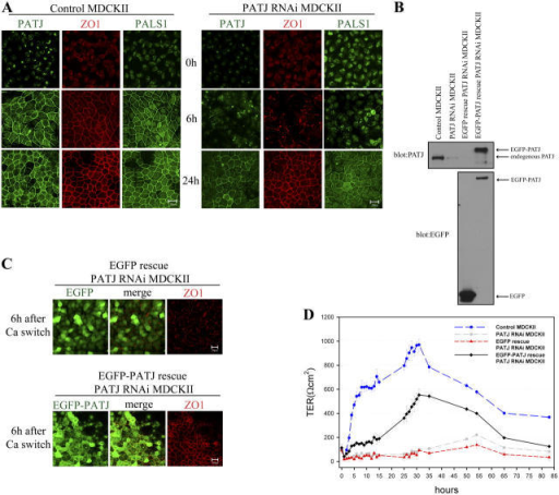 Tight junction formation is delayed in PATJ RNAi MDCKII cells and expression of EGFP-PATJ rescues the formation of tight junctions. (A) Control and PATJ RNAi MDCKII cells were subject to calcium switch experiments to assess the formation of tight junctions. At different time points after addition of calcium (0 h, 6 h, and 24 h), the cells were fixed, permeabilized, and immunostained for PATJ, PALS1, and the tight junction marker protein, ZO1. (B) Lysates were prepared from control (first lane), PATJ RNAi (second lane), EGFP rescue PATJ RNAi (third lane), and EGFP-PATJ rescue PATJ RNAi (fourth lane). Anti-PATJ (top) and anti-EGFP (bottom) antibodies were used for Western blot analysis to detect endogenous PATJ and EGFP-PATJ. (C) EGFP (top) and EGFP-PATJ (bottom) rescue PATJ RNAi MDCKII cells were fixed, permeabilized, and immunostained for a tight junction marker protein, ZO1 (red) at 6 h after calcium switch as described in Materials and methods. EGFP and EGFP-PATJ are shown in green colors. (D) TER was measured with control (blue circle, long dashed line), PATJ RNAi (gray square, dash-dot line), EGFP rescue PATJ RNAi (red triangle, short dashed line) and EGFP-PATJ rescue PATJ RNAi (black diamond, solid line) MDCKII cells. SDs are shown as error bars, n = 3. Bars, 20 μm.