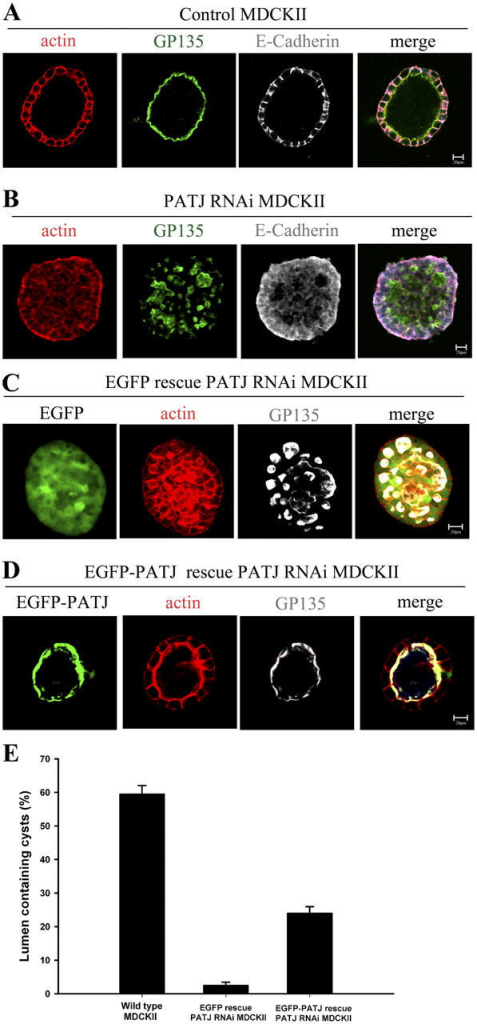 PATJ RNAi MDCK II cells do not polarize correctly in collagen gels and expression of EGFP-PATJ rescues the development of cysts in PATJ RNAi MDCKII cells. (A) Control MDCKII cells grown in collagen gels form normal cysts with a single lumen. A single MDCKII cell was grown in a collagen gel for 10 d. Cysts were immunostained for actin (red), GP135 (green) as an apical marker, and E-cadherin (gray) as a lateral marker as described in Materials and methods. (B) PATJ knockdown MDCKII cells are mispolarized without an apical lumen. Cysts were immunostained as described in A. (C) EGFP rescue PATJ RNAi MDCKII cells were grown in collagen gels for 10 d. Cysts were immunostained for actin (red) and GP135 (gray) as described in Materials and methods. (D) EGFP-PATJ rescue PATJ RNAi MDCKII cells were grown in collagen gels for 10 d. Cysts were immunostained for actin (red) and GP135 (gray) as described in C. (E) Quantification of cysts containing correct lumens. Cysts containing lumens were counted in wild-type, EGFP rescue, and EGFP-PATJ rescue PATJ RNAi MDCKII cells. Cysts which have contiguous lumen were counted as positive. Cysts containing no lumen were counted as negative. SDs are shown as error bars, n = 3. The number of lumen containing cysts was increased from 2.0% (EGFP rescue MDCKII) to 24% (EGFP-PATJ rescue MDCKII), P < 0.001, unpaired t test. Bars, 20 μm.