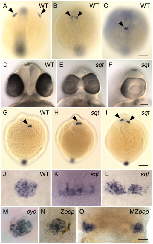Pineal precursors fail to reach the midline of the forebrain in squint mutants. (A-C) WT embryos were processed for whole mount in situ hybridization with an antisense probe for the gene flh, which is expressed in the pineal precursors (arrowheads). Images are dorsal views of the entire embryo, anterior to the top. (A) At the 2–3 somite stage, pineal precursors are located in two widely spaced lateral domains. (B) By the 5–6 somite stage, these domains have moved towards the dorsal midline of the forebrain. (C) By the 7–8 somite stage, a single, round-shaped pineal anlage has formed. (D-F) At 2 dpf, sqt mutant embryos from the same clutch have a wide range of eye phenotypes. Frontal views of live embryos with dorsal to the top. (D) The eyes of WT embryos and some sqt mutants (not shown) are completely separated from one another. (E) Other sqt mutants have partially fused eyes that form two lenses or (F) a single eye with one lens. (G-L) Embryos at the (G-I) 7–8 somite stage and (J-L) 24 hpf were processed for whole mount in situ hybridization with a probe for the pineal gene (G-I) flh or (J-O) otx5, dorsal views, anterior to the top. (G,J) In WT siblings, the pineal precursors (arrowhead) have converged to form a round pineal anlage. In sqt mutants the pineal precursors (arrowheads) form a domain that is (H,K) elongated or (I,L) divided in two. The pineal anlagen of the (M) cyc mutant and the (N) Zoep mutant have a round shape that is similar to that of WT fish, while the pineal precursors of the (O) MZoep mutant are divided in two domains. All images are dorsal views with anterior to the top. Scale bars: 100 μm (A-C, G-I), 70 μm (D-F), 30 μm (J-O).