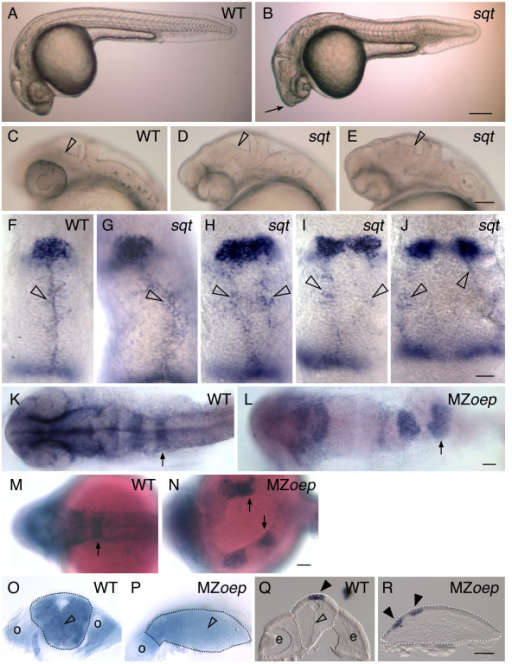 Correlation between an expanded or divided pineal and an open neural tube. (A-E) Lateral views of live embryos at 1 dpf, anterior to the left. (A) While the head of the WT embryo is smooth and rounded, (B) the head of the sqt embryo is pointed (arrow). (C-E) Higher magnification of the anterior embryo reveals variability in the brain morphology of sqt mutants. In (C) WT embryos and (D) some sqt mutants, the border between the tectum and tegmentum (open arrowheads) appears as a smooth, straight line. (E) However, in some sqt mutants the border appears to be abnormally shaped or indistinct (open arrowhead), suggesting that the morphology of tectum or tegmentum is perturbed. (F-J) Embryos were fixed at 1 dpf, and processed for in situ hybridization with antisense probes for the pineal gene otx5 and the dorsal neural tube gene wnt1. In (F) WT and (G) sqt embryos with a single, round pineal anlage, the wnt1 expressing cells (open arrowheads) form a single domain along the dorsal neural tube. In contrast, sqt embryos with an (H) elongated or (I-J) divided pineal anlage have two parallel lines of wnt1 expressing cells. (K-P) Embryos were fixed at 1 dpf, processed for in situ hybridization with an antisense probe for epha4a, and then either (K-N) imaged in dorsal view, anterior to the left or (O, P) cut through epha4a-expressing rhombomere 5 to bisect the embryo into anterior and posterior halves. The locations of the otic vesicles (o), rhombomere 5 (arrows), and midline (open arrowhead) are indicated. A potential region of midline is marked by the open arrowhead in P. (Q, R) 14 μM frozen cross sections through the diencephalon of 1 dpf (Q) WT or (R) MZoep embryos stained for otx5 expression. The midline of the brain (open arrowhead), and pineal precursors (closed arrowheads) are indicated. Dotted lines outline the neural tubes in panels O-R. Scale bars: 200 μm (A,B), 100 μm (C-E), 30 μm (F-J), 50 μm (K-R).