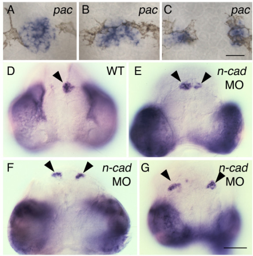 The expanded and divided pineal phenotype is present in n-cad mutants and morphants. (A-C) Homozygous pac mutants were fixed at 30 hpf, and then processed for in situ hybridization with an antisense probe for otx5. Dorsal views with anterior to the top. pac mutants could have a (A) normal, round-shaped pineal morphology, (B) an elongated pineal anlage or (C) a divided pineal. (D-G) Embryos were injected at the one to four cell stage, fixed at 74 hpf, and then assayed for expression of otx5. Frontal views with dorsal to the top. The presumptive pineal organ (arrowheads) forms (D) a single domain in control embryos and a (E-G) divided pineal in embryos depleted in N-cad through morpholino (MO) injections. Scale bars: 30 μm (A-C), 100 μm (D-G).