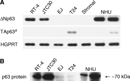 Expression of p63 in cultured cells. (A) Agarose gel electrophoresis of RT–PCR products using isoform-specific primer sets. aAs PCR products were undetectable at 30 cycles of PCR amplification, 40 cycles were performed for TAp63. (B) Immunoblotting for p63 protein using the 4A4 antibody.