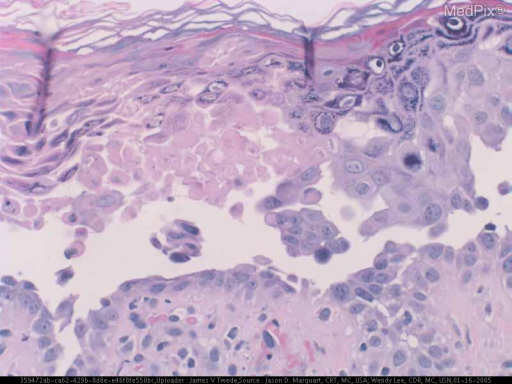 Histopath: The biopsy shows multiple foci of epidermal acanthosis and areas of partial acantholysis with intracellular edema. Suprabasilar clefts with acantholytic cells singly and in clumps line the lacunae. A broad vesicle with clumps of acantholytic cells floating free within the vesicle is also noted. There is no adenxal involvement. There is a mild superficial perivascular lymphocytic infiltrate in the dermis.