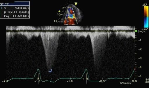 Continuous wave (CW) Doppler across the left ventricular outflow tract showing a gradient of 82.2 mmHg prior to insertion of pacemaker.