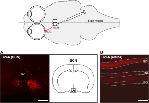 retrograde transmission following cns injection stereot open i
