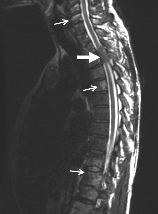 MRI without contrast showing T3 cord compression by a s ...