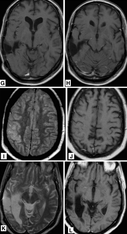 38-year-old man who was treated 5 years previously for a right temporal anaplastic astrocytoma with chemo- and radiation therapy, now presenting with increasing epileptic activity and gradually progressive left sided hemiparesis and dysarthria. T2 weighted FLAIR MR images (a, b) showing gyral swelling and signal increase in the temporal lobe. T2 weighted MR image (c, d) showing gyral swelling and signal increase in the temporal lobe. A post-operative parenchymal defect is seen in the area of the previously treated astrocytoma. T1 weighted MR images after gadolinium administration (e, f) abnormal gyral and leptomeningeal enhancement in the temporal lobe and in the basal frontal areas. No focal enhancement in post-operative parenchymal defect. MR images 3 months later. g, h T1 weighted MR image after gadolinium administration showing persistent gyral abnormalities but disappearance of abnormal enhancement. MR images 6 months after treatment for recurrent anaplastic astrocytoma using chemotherapy. i T2 weighted FLAIR MR image and j T1 weighted MR image after gadolinium administration showing persistent gyral abnormalities but disappearance of abnormal enhancement. MR images 6 months after treatment for recurrent anaplastic astrocytoma using chemotherapy. k T2 weighted MR image and l T1 weighted MR image after gadolinium administration resolution of T2 abnormalities and disappearance of abnormal enhancement in the deep temporal area