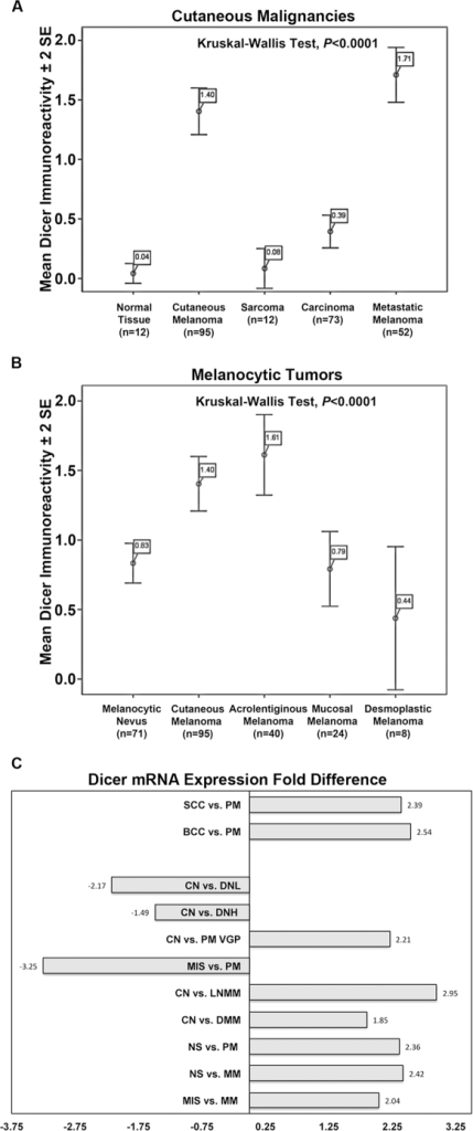 Dicer expression was cancer-cell specific among cutaneous malignancies and was significantly higher in primary and metastatic melanoma compared to common melanocytic nevus.A) Primary cutaneous (n = 95) and metastatic (n = 52) melanomas had the highest levels of Dicer immunoreactivity vs. carcinomas (n = 73) and sarcomas (n = 12). B) Cutaneous (n = 95) and acrolentiginous (n = 40) melanomas had the highest levels of Dicer immunoreactivity vs. melanocytic nevi (n = 71), mucosal (n = 24) and desmoplastic (n = 8) melanomas. Dicer immunoreactivity is shown as mean (boxed) ±2 standard error (SE). The statistical significance was measured for all independent samples comparing to each other (Kruskal-Wallis Test, P<0.0001). C) Pooled analysis performed on publically available transcriptional profiling data showed significant changes in Dicer mRNA levels during melanoma progression. This analysis included 25,135 genes from 20 disease groups and 139 individual specimens of squamous cell carcinoma (SCC), basal cell carcinoma (BCC), primary melanoma (PM), common nevus (CN), dysplastic nevus with low (DNL), dysplastic nevus with high atypia (DNH), primary melanoma vertical growth phase (PM VGP), melanoma in situ (MIS), lymph node melanoma metastases (LNMM), dermal melanoma metastases (DMM), normal skin (NS) and melanoma metastases (MM) [21], [22]. Dicer1 ranked among the top 20% most significantly altered genes.