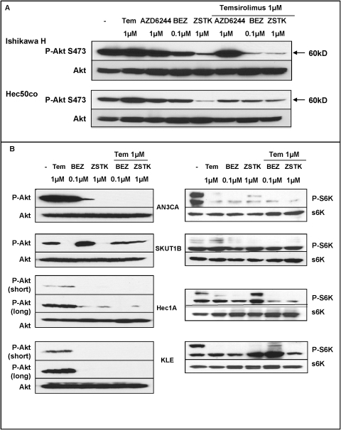 Temsirolimus-induced Akt phosphorylation is decreased by BEZ235 and ZSTK474, but not by AZD6244.A, Ishikawa H (upper panels) and Hec50co (lower panels) cells were grown for 24 hrs and treated overnight with the indicated inhibitors. Phospho-Akt (P-Akt S473) and total Akt were assessed by Western blotting. B, Endometrial cancer cell lines were treated with the indicated inhibitors overnight. Total protein extracts were analyzed by Western blotting for P-Akt S473 and total Akt (left panels) or phospho-p70S6K T389 (P-S6K) and total p70S6K (S6K, right panels). Phospho-Akt blots for Hec1A and KLE cells were subjected to a long exposure to visualize low levels of Akt phosphorylation.