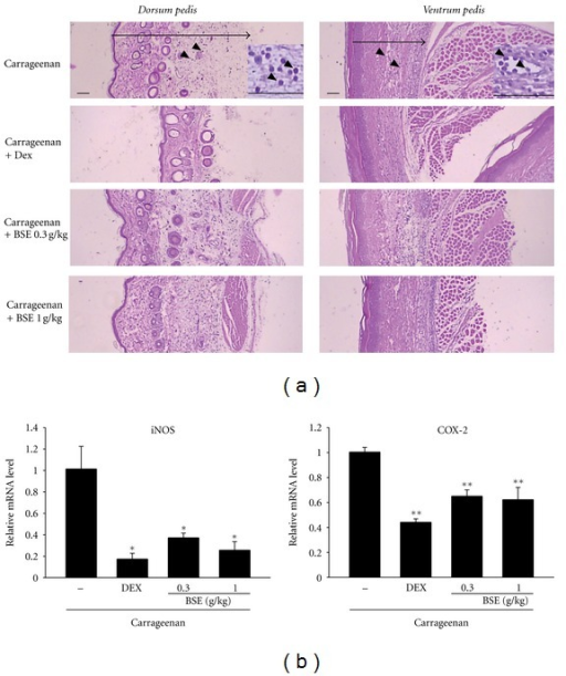 Changes on histological profiles and proinflammatory genes in the paw. (a) In each rat, cutaneous regions of dorsum and ventrum pedis were stained with H&E and used for histological sample preparation in this study. Arrow indicated total thicknesses measured, and arrow heads were infiltrated inflammatory cells. Scale bars = 160 μm. Inset of upper picture is the macrophotography to show more precisely the infiltration of inflammatory cells. (b) The levels of mRNAs in the paw of rats analyzed by real-time PCR. Values represent the mean ± S.E.M. (significantly different as compared to carrageenan-treated group, *P < 0.05, *P < 0.01). BSE: Bojesodok-eum.