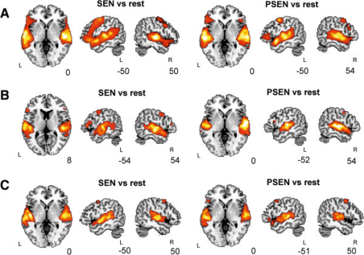 Whole brain fMRI activations for the three groups. Results are shown over an MNI template, at a p < 0.05 FDR-corrected threshold with 20 voxels of cluster extent using neurological convention. A. Healthy participants B. LMTLE patients. C. RMTLE patients. PSEN, Passive Listening to Pseudo Sentences; SEN, Passive Listening to Sentences; L, Left hemisphere; R, Right hemisphere.
