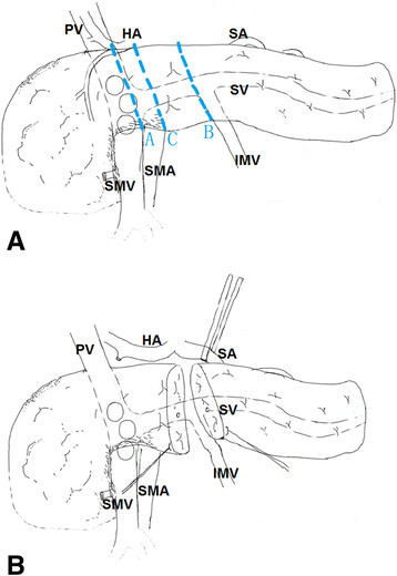 Schematic diagram a pancreatic tumors involving the a open i schematic diagram a pancreatic tumors involving the anterior of the mesenterico portal vein ccuart Choice Image