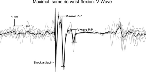 Representative traces to show the peak‐to‐peak (P‐P) amplitudes of the M‐ and V‐waves elicited during a maximal voluntary contraction.