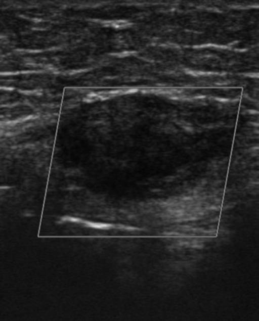Ultrasound scan showing a hard 2 x 3cm lesion in her left rectus.