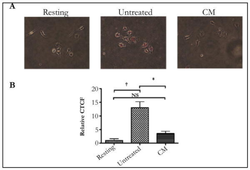 The conditioned media of RPE eyecups suppresses pHrodo-bioparticle fluorescence in macrophages. The macrophages were cultured as described, and treated with the conditioned media of RPE eye cups (CM) for 24 hoursA) Representative images of the florescence observed with resting, untreated, and CM-treated macrophages.B) The corrected total cellular fluorescence (CTCF) was calculated and made relative to macrophages that were not given beads (Resting). The results are the mean ± SD of 4 cultures analyzing a total of 80 – 100 cells per condition.*Significantly different P ≤ 0.01, and NS is not significant. †P≤ 0.001. The RPE conditioned media suppressed the fluorescence of pHrodo-bioparticles in macrophages indicating suppression of the activation of the phagolysosome.