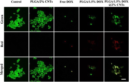 Confocal laser scanning microscopy images of HeLa cells treated with PLLA/2 % CNTs, free DOX, PLLA/1.5 % DOX, and PLLA/1.5 % DOX@2 % CNTs. DOX concentration was 25 μg/mL. The red fluorescence indicates the released DOX. The green fluorescence represents Alexa Fluor 488® phalloidin-stained F-actin. Scale bars = 100 μm