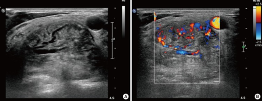 Ultrasonography (US) showed a hypoechogenic and hypervascular mass involving the right parapharyngeal space posterolateral to the right common carotid artery. US-guided core needle biopsy was performed without complications.