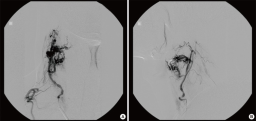 Angiography and tumor embolization were planned 3 days before the elective operation. Angiography demonstrated a hypervascular mass fed by a branch of the right thyrocervical artery, and the mass was successfully embolized. (A) Anterior to posterior view, (B) lateral view.