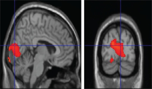 T1 MRI superimposition showing the cluster of voxels in the cuneus, lingual gyrus, and parahippocampal gyrus, mainly in the left hemisphere, in which FDG uptake was significantly higher at OC (n = 26) as compared to NC (n = 26) (on the left sagittal and on the right coronal projections). Coordinates and regional details are presented in Table 1. FDG = 18F fluorodeoxyglucose, MRI = magnetic resonance imaging, NC = neutral olfactory condition, OC = pure olfactory condition.