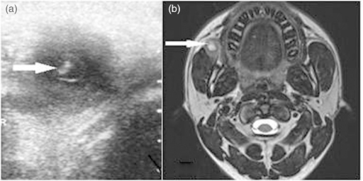 (a) USG image. Arrow showing an anechoic lesion with the scolex inside. (b) T2-weighted MR image. Arrow showing a hyperintense lesion in the bucco-masseteric region.