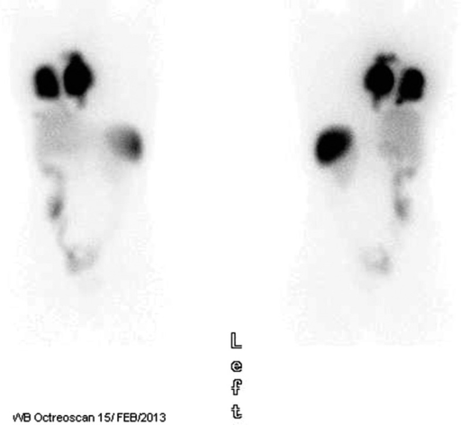A 36-year-old woman with a diagnosis of a left popliteal synovial sarcoma treated with surgery and chemotherapy (adryamicin/ifosfamide). A local recurrence required additional surgery followed by chemoradiotherapy (70 Gy plus ifosfamide). She had a disease-free interval of 4 years until lung metastasis was detected. Between October 2007 and May 2012, she was treated with several drug combinations (in total, she had been resistant to >6 lines of therapy including all the available active drugs in soft tissue sarcomas) and operated by thoracotomy in 3 stages. Pazopanib treatment was initiated in November 2012 and then interrupted because of hemoptysis. She was referred to our institution in February 2013 presenting extreme weight loss and a performance status of 2. The most recent scan showed lung metastasis in more than 50% of the right side of the thorax, with large pleural disease and mediastinum involvement. Traqueal compression at carina level was present. A computed tomography–guided needle biopsy from a lung metastatic lesion was performed for an expression microarray. A highly significant expression of the somatostatin receptor 2 (SSTR2) gene (in excess of 10-fold) and to a lesser extent SSTR5 (>5-fold) as compared with the normal control tissue was apparent in the normalized microarray data. There are references in literature identifying SSTR in more than 80% of the soft tissue tumors analyzed by reverse transcriptase–polymerase chain reaction,1,2 as well as positive uptake in molecular imaging.3,4 Figure 1 shows the high uptake in the right hemithorax in the Octreoscan confirming the potential indication for somatostatin analog–based treatments. She began lanreotide 30 mg intramuscularly every 2 to 3 weeks until May 31, 2013, reaching disease stabilization.
