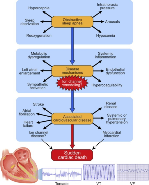 Schematic outlining potential pathophysiological aspects of OSA, disease mechanisms, and development of associated CVD. Ion channel remodeling may be an important mechanism in associated CVD increasing the propensity for SCD directly and indirectly. Modified from Somers et al, Circulation,10 with permission from Wolters Kluwer. CVD indicates cardiovascular diseases; OSA, obstructive sleep apnea; SCD, sudden cardiac death; VF, ventricular fibrillation; VT, ventricular tachycardia.