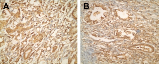 (A and B) Immunohistochemical staining using HGF antibody showing positive reaction in gastric cancer cells (×40).Abbreviation: HGF, hepatocyte growth factor.