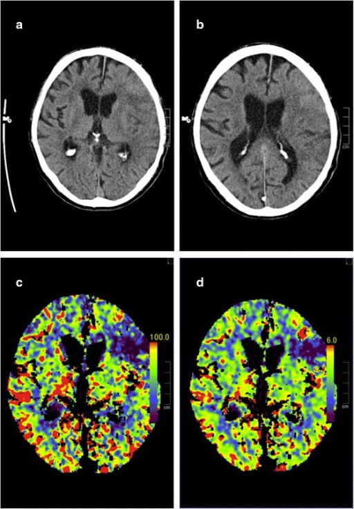 Non-contrast CT at admission showing left-sided MCA-infarction (a, b). CT-perfusion showing reduced perfusion of the left anterior MCA-territory in Cerebral Blood Flow (CBF)- (c) and Cerebral Blood Volume (CBV)-measurements (d)