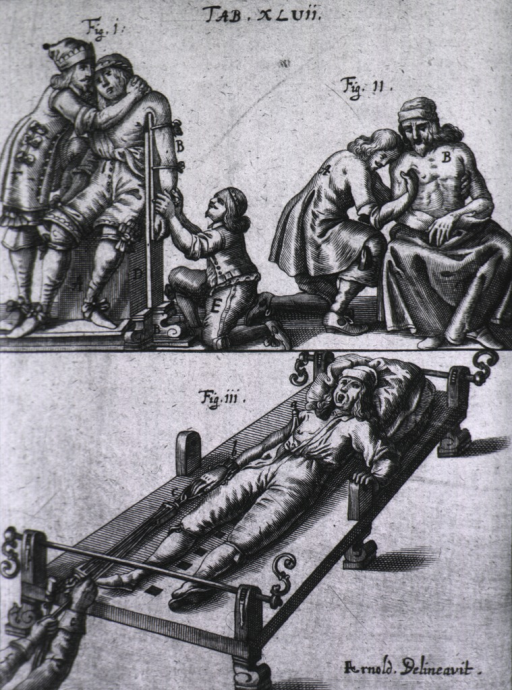 <p>Three vignettes showing treatment for a dislocated arm and shoulder using a brace and a luxation table.</p>