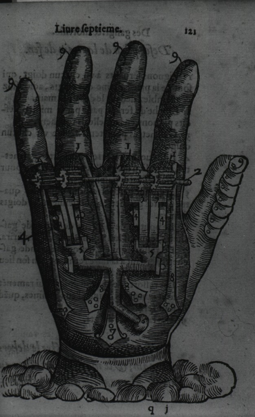 <p>Hand with mechanical apparatus.</p>
