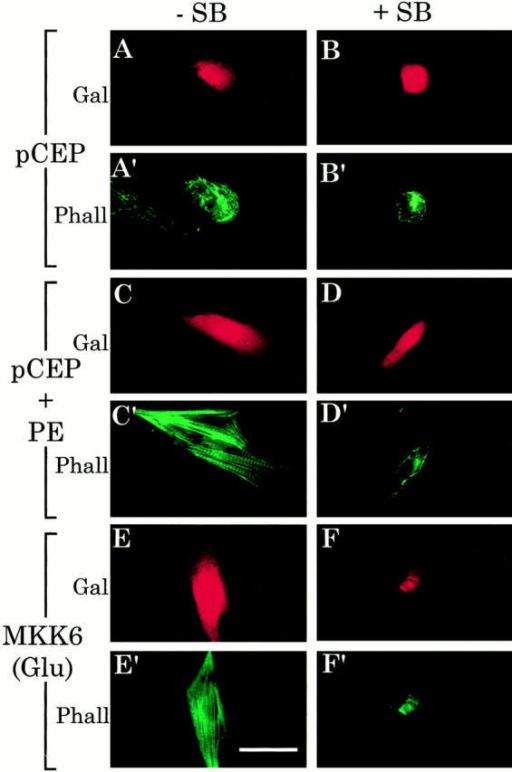 Fluorescent microscopic analyses of the effects  of SB 203580 on size and sarcomeric organization in myocardial cells. Myocardial cells  were cotransfected with MKK6  (Glu) or an empty vector  control (pCEP and pCEP +  PE) and CMV–β-galactosidase and then plated on glass  slides, as described in the legend for Fig. 3. After maintenance for 48 h in serum-free  control medium with or without SB 203580 (20 μM) or  DMSO (vehicle control) and  with or without PE (10 μM)  + propranolol (1 μM), as  shown, cultures were fixed in  paraformaldehyde and immunostained for β-galactosidase expression (Gal) (A– F), and the same cultures  were stained for actin with  BODIPY-phalloidin (Phall)  (A′–F′). Bar, 50 μm.
