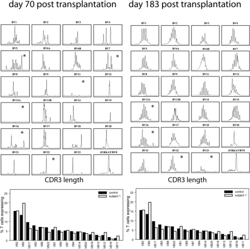 Spectratype data.Raw CD4+ spectratype data (upper panel) forsubject 1 on days 70 (left) and 183 (right) post-transplantation.CD4+ TCRBV usage frequency for average over10 healthy controls (solid bars), and subject 1 (striped bars) onthe same two days. The raw spectratype profiles are not representedon a consistent scale. Assays that had no peaks above 500fluorescent units are routinely excluded from subsequent analysis.These are marked with an asterisk.