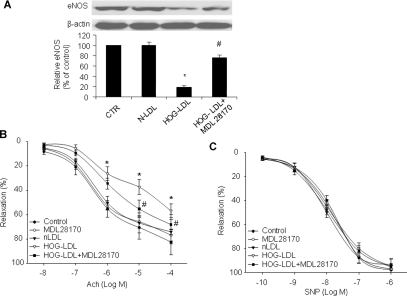 HOG-LDL-induced activation of calpain decreases eNOS levels and impairs endothelium-dependent relaxation in C57BL/6J mice aorta. (A) Western blot analysis of total eNOS levels in aortas incubated with HOG-LDL (100 μg/ml for 24 hrs) in the presence or absence of the calpain inhibitor III, MDL28170 (20 μM). n= 4 in each group, **P < 0.01 versus N-LDL, versus HOG-LDL. (B) Endothelium-dependent relaxation of HOG-LDL-exposed aortas treated with or without MDL28170. n= 5, *P < 0.05 for HOG-LDL versus untreated control or N-LDL, #P < 0.05 for HOG-LDL versus HOG-LDL + MDL28170. (C) Endothelium-independent relaxation in aortas treated with HOG-LDL ± MDL28170. Results (mean ± S.E.M.) are expressed as the rate of relaxation to the pre-contraction, n= 4.
