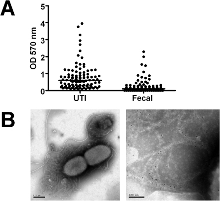 Biofilm expression by uropathogenic and fecal E. coli isolates.(A) Adhesion capacity and thickness of biofilm produced by E. coli isolates collected from urine of patients with urinary tract infections (UTI, n = 99) and from fecal samples of healthy individuals (Fecal, n = 77) was measured. Individual values and medians are presented, depicted as optical density (OD) at 570 nm after dissolution of crystal violet. The difference is significant (P<0.0001, Mann-Whitney U test). (B) Isolates from urine samples were investigated by electron microscopy. The left image shows an overview, the right image is a magnification showing immunogold-labelled curli. The scale bars show 0.5 µm (left) and 100 nm (right), respectively.