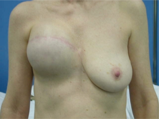 Expander right breast. Expansion after 4 months.